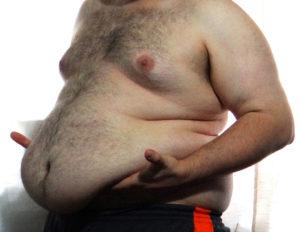 Ожирение у парня